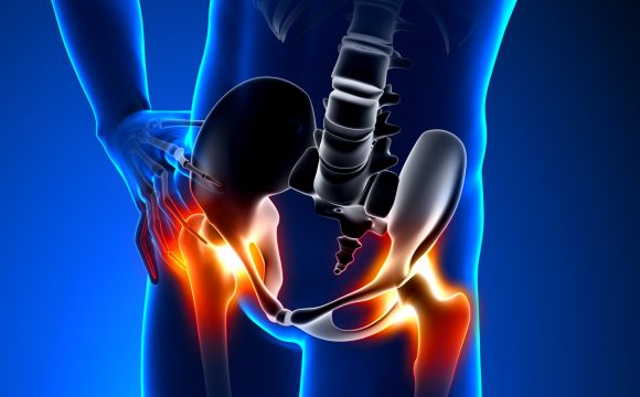 Kalça Protezi Ameliyatı Nedir?