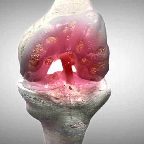 Diz Kireçlenmesinde Ameliyat Dışı Tedavi