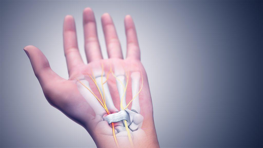 Karpal Tünel Sendromunda median sinirin üzerini örten transvers karpal bağ kalınlaşır ve sinire bası yapar