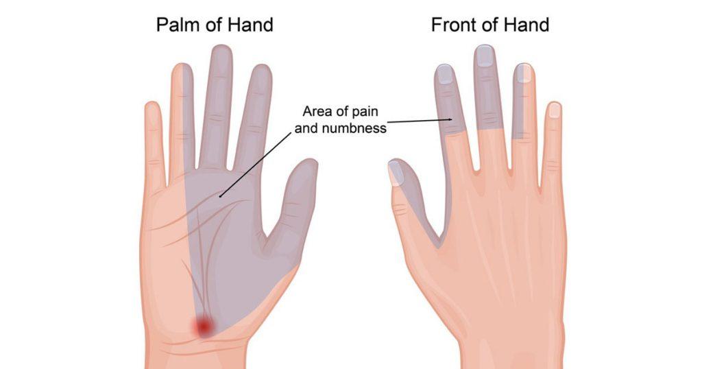 Karpal Tünel Sendromunda karıncalanma, uyuşma ve ağrı hissedilen bölgeler ilk 3 parmak ve 4.parmağın yarısıdır