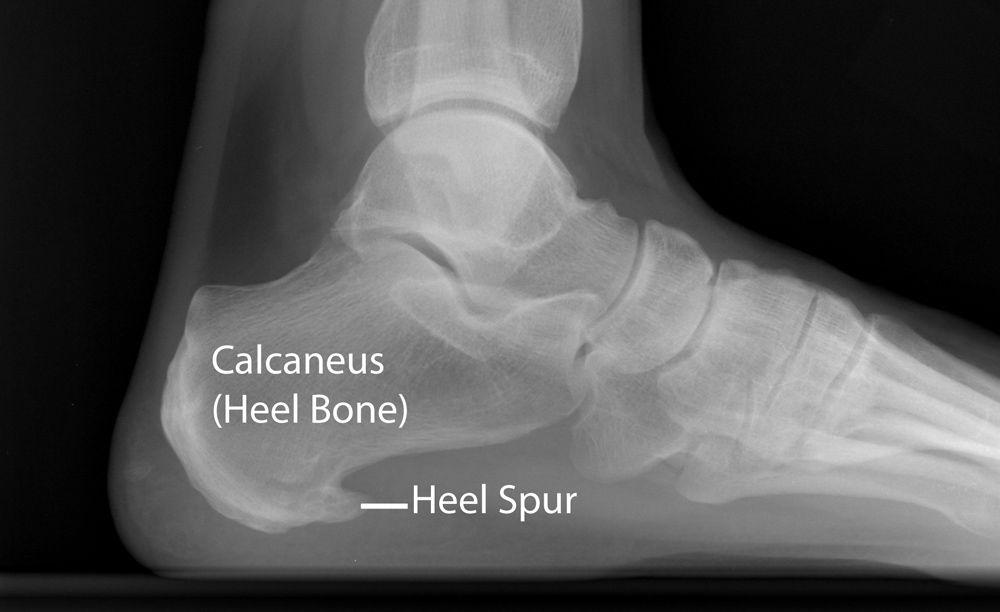Topuk dikeni hastalarında röntgendeki dikenimsi çıkıntı, heel spur